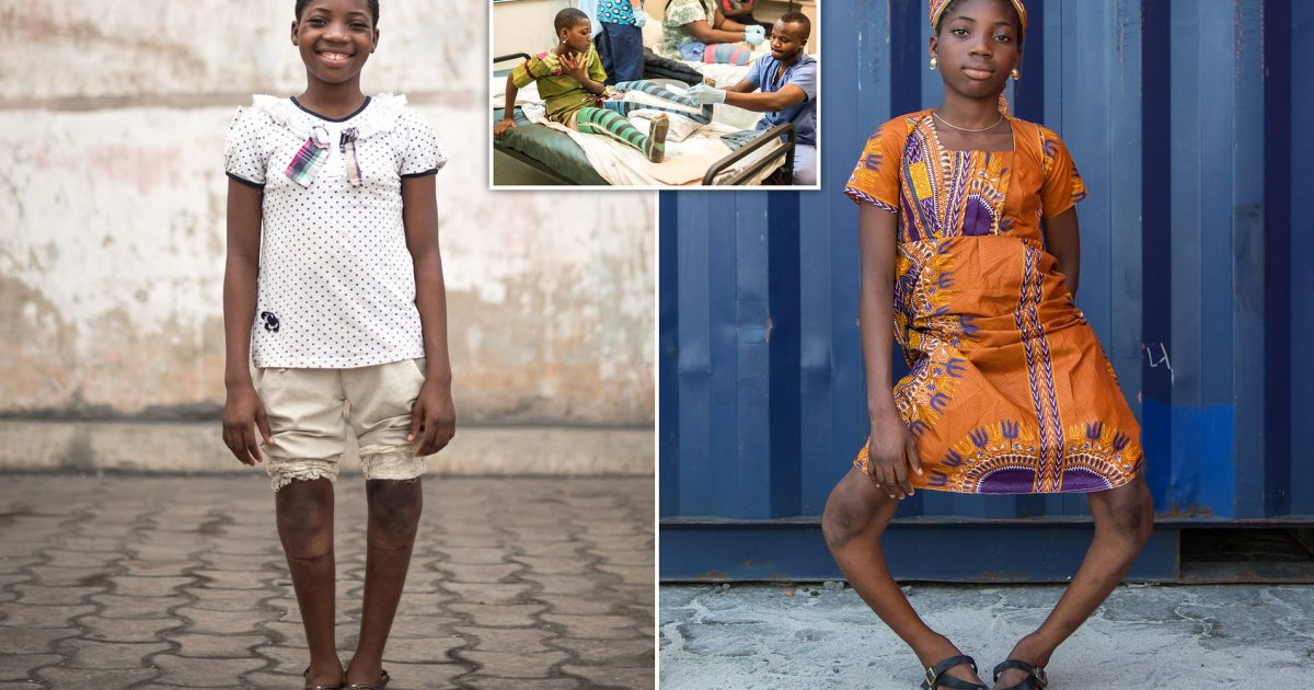 Girl With Severely Bowed Legs Gets Life-Changing Surgery To Correct Her Deformity