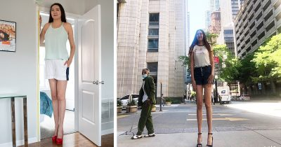 6ft 9in Woman With 'World's Longest Legs' Who Has Nightmare Buying Clothes