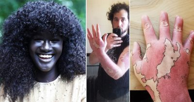 17 People Who Were Born With The Wonder Of Nature Printed On Them