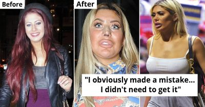15 Celebrities Who Regretted Going Under The Knife For Beauty Procedures